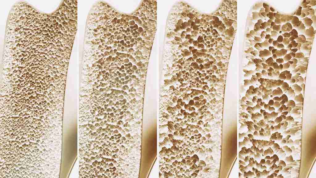 osteoporosi sintomi trattamento cure diagnosi