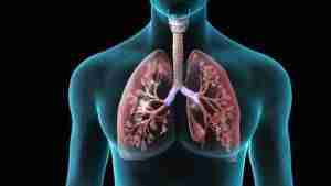 polmonite batterica virale sintomi