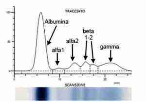 quadro-proteico-elettroforetico-elettroforesi-immunoglobuline